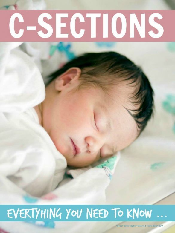 C-section ... a c-section may not be part of your birth plan or the perfect end of your pregnancy but it really helps to know what to expect in case you need a c-section to deliver baby safely ...
