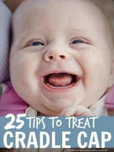 Cradle Cap Treatment Tips - All sorts of tips on how to treat cradle cap in babies and toddlers ...