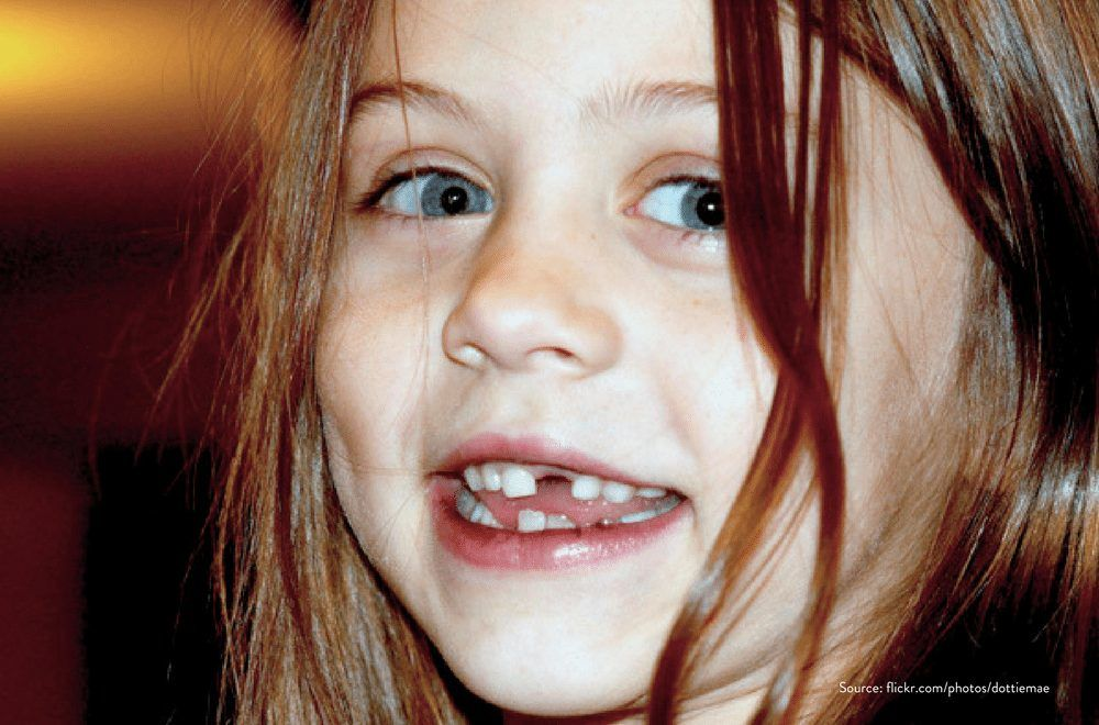 Losing baby teeth - everything you need to know
