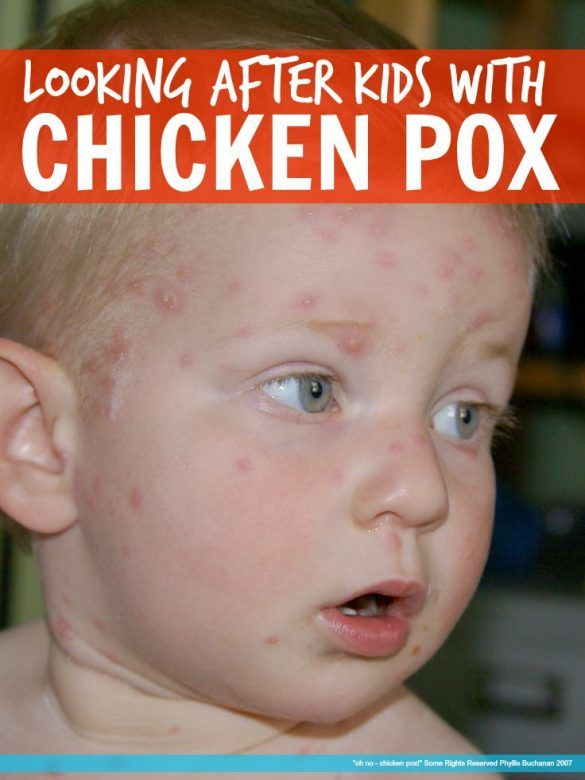 Chicken pox - Worried about how to cope with Chicken Pox and the dreaded itching? Here is how we got our five year old through Chicken Pox with NO itching and no scarring!