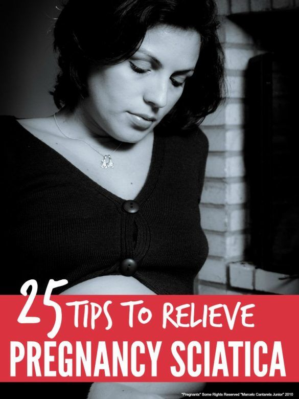 Pregnancy sciatica - simple ways to prevent and relieve sciatica during pregnancy and ensure you get the help you need