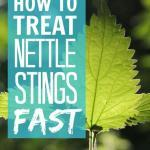 How To Treat Nettle Stings