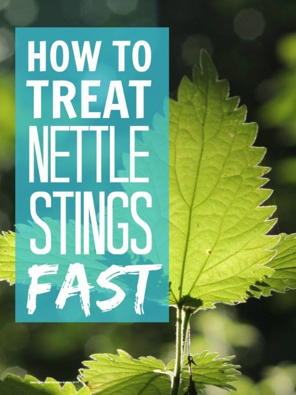 How To Treat Nettle Stings Mums Make Lists